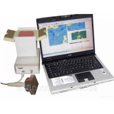 Термограф контактний цифровий ТКЦ-1 (Термомамограф)